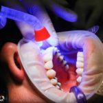 Zła metoda żywienia się to większe niedobory w jamie ustnej a dodatkowo ich zgubę